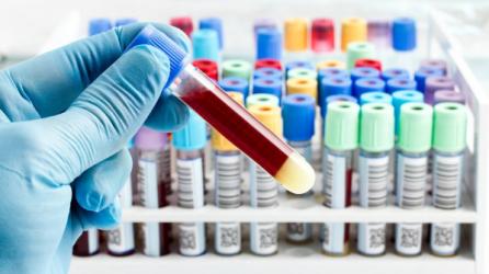 Extensão em Técnicas para coleta de amostras de sangue